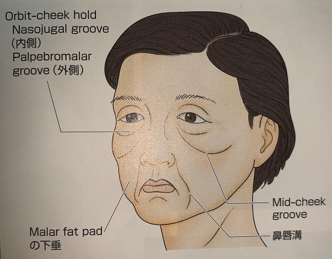 顔面皮膚の老化