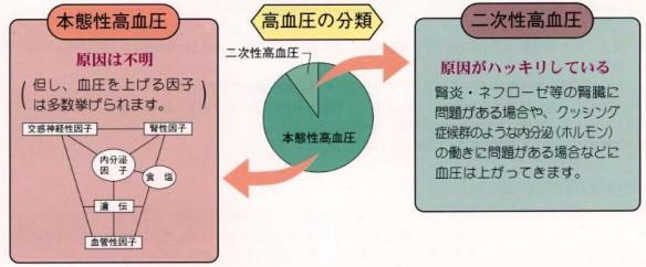 本態性高血圧症と二次性高血圧症の分類と原因