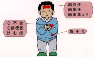 高血圧症と合併症